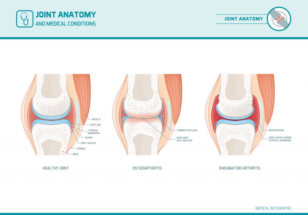 Osteo v rheumatoid arthritis