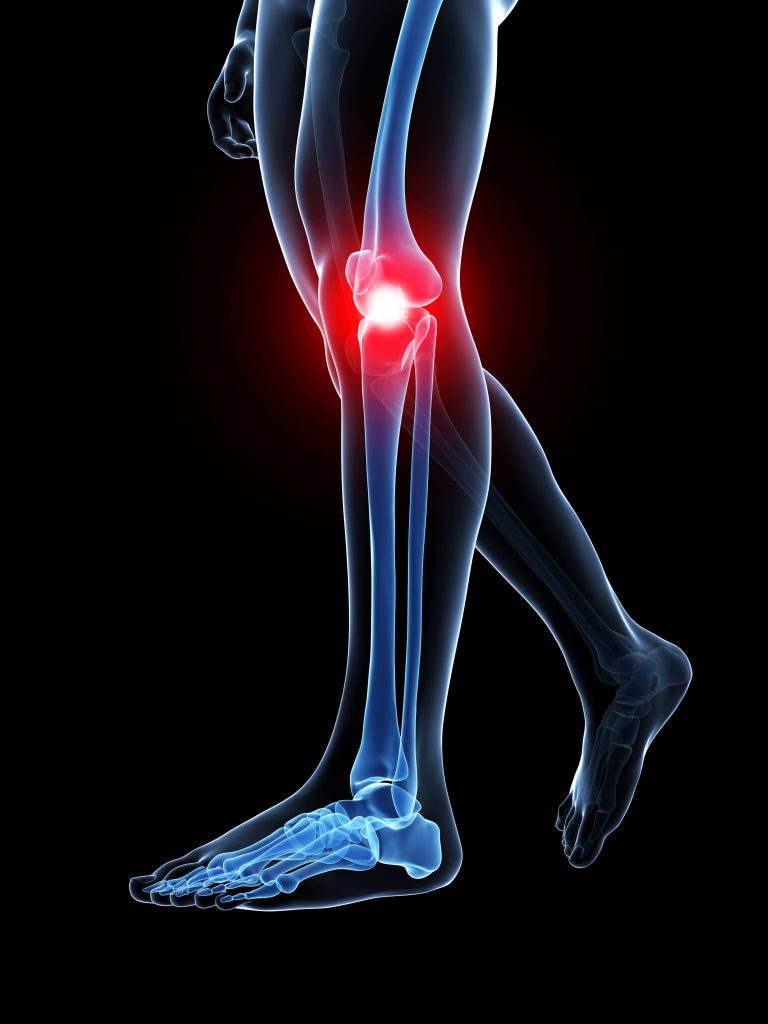 ITB Syndrome runners' knee